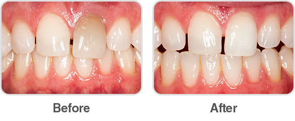 Opalescence Endo Before and After