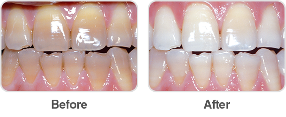 Opalescence PF 35% Before and After